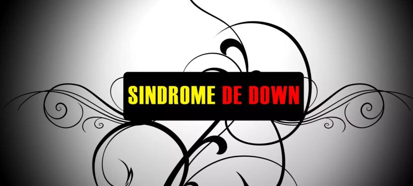 """""""Quem foi que disse: Síndrome deDown"""""""